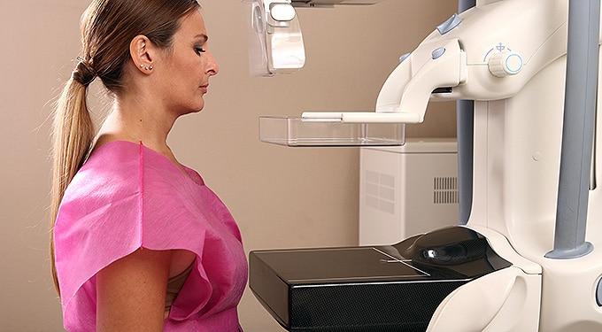 Életmentő mellrákszűrés: a mammográfia és más lehetőségek