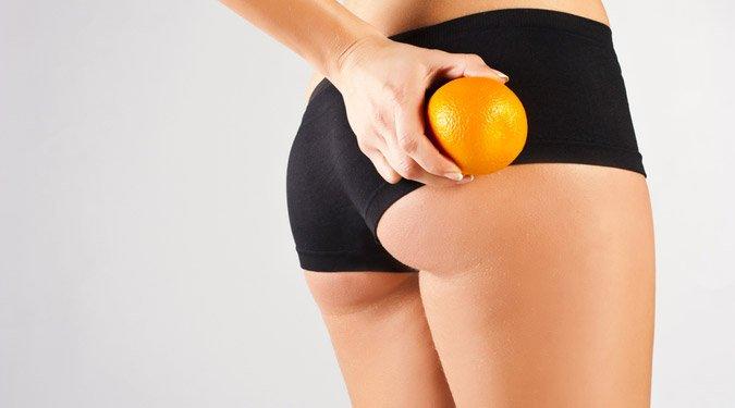 12 tény a narancsbőrről, amit minden nőnek ismernie kell