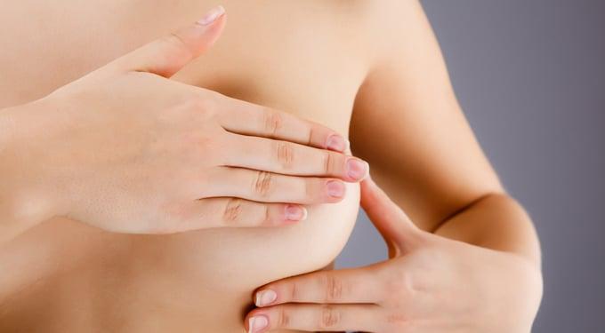 5 egyszerű tipp a mellrák kockázatának csökkentésére