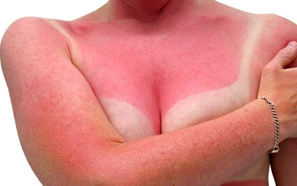6 bevált tipp a napégés kezelésére