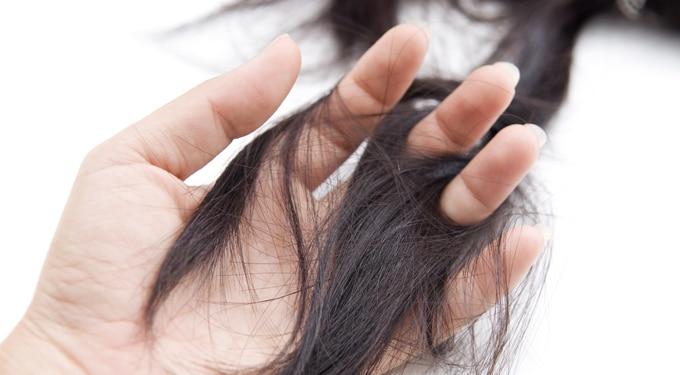 7 bevált módszer a hajhullás kezelésére