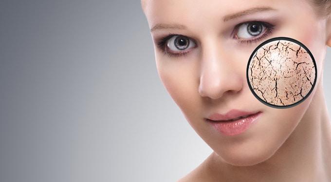 7 meglepő dolog, ami szárítja a bőröd
