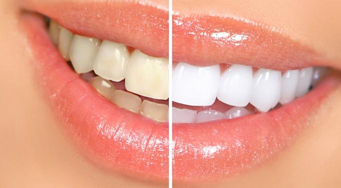 7 tipp a fehérebb fogakért – orvos nélkül