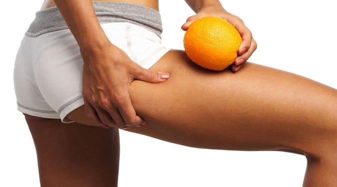 A 10 leghatékonyabb megoldás narancsbőr ellen