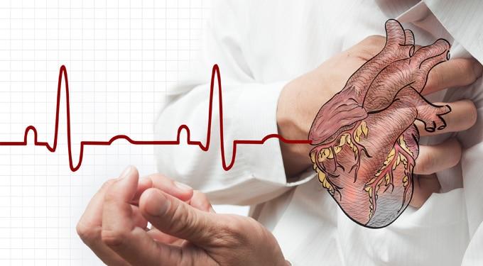 A 7 leggyakoribb szívbetegség