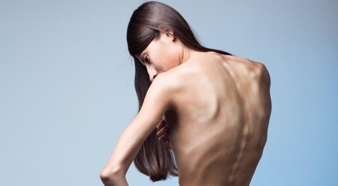 A soványság okai – Az alacsony testsúly káros és kóros is lehet