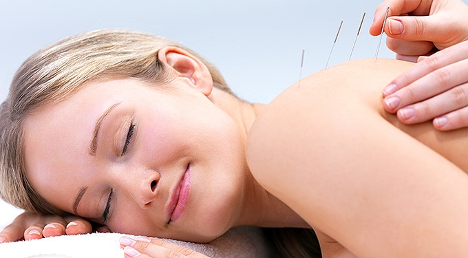 Amit az akupunktúráról tudnod kell