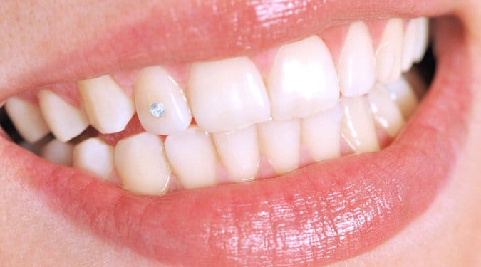 Divatos fogékszerek