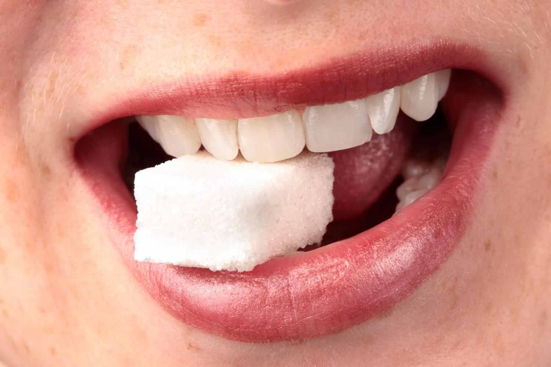 Ezért árt a cukor a fogainknak
