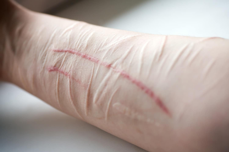 Honnan tudhatod, hogy valaki hajlamos az önbántalmazásra?