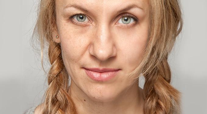 Megoldás 7 bőrbajra, amit magadnak okoztál
