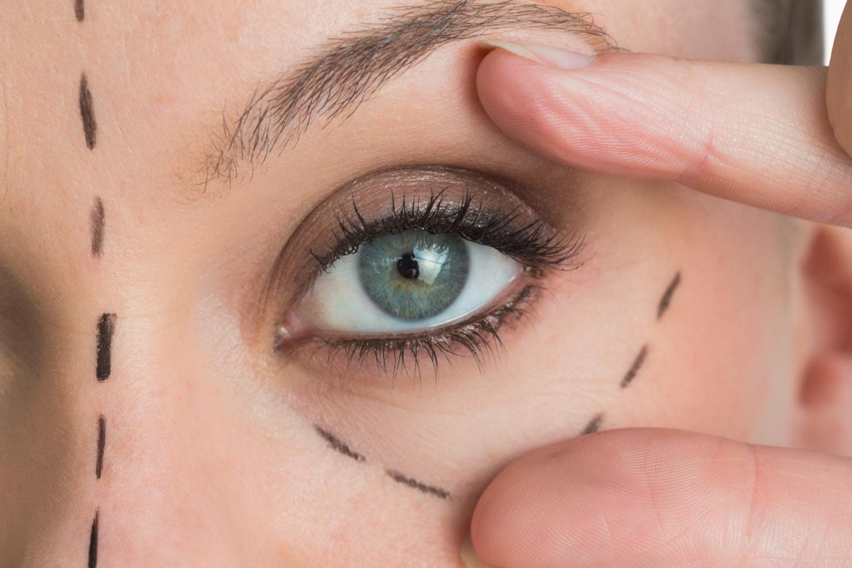 Plasztikai műtét: érvek és ellenérvek