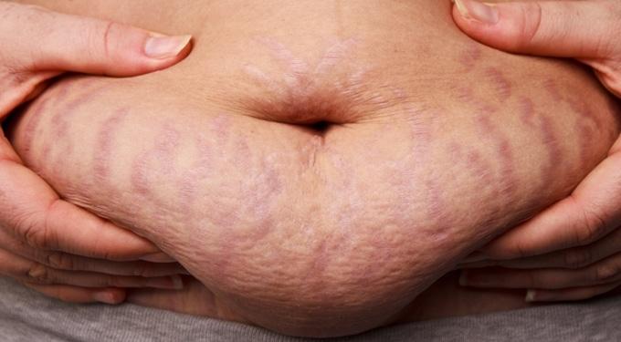 Természetes megoldások a terhességi csíkok eltüntetésére
