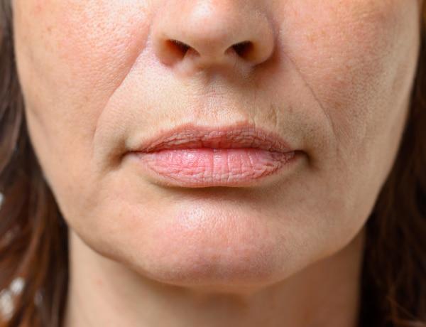 Így halványíthatod a száj körüli ráncokat természetes módszerekkel