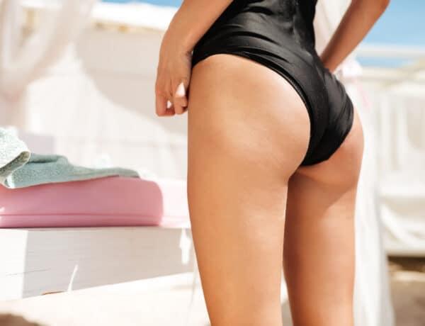 Pattanások a fenekeden? Így szabadulj meg tőlük, mielőtt bikinit húzol!