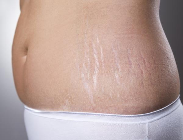 Bőrproblémák várandósság alatt + praktikák, amikkel megszüntetheted