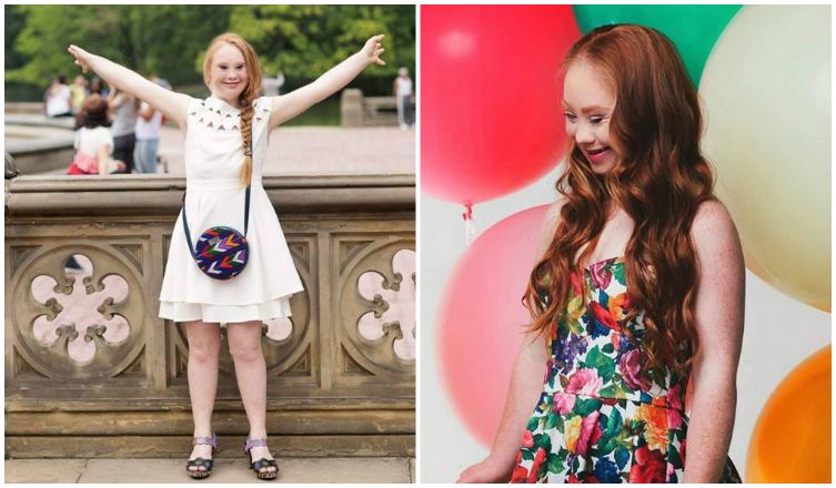 Down-kóros fiatal lány a divatvilág új kedvence