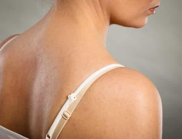 Könnyen kipirosodik a bőröd? A 4 leggyakoribb ok