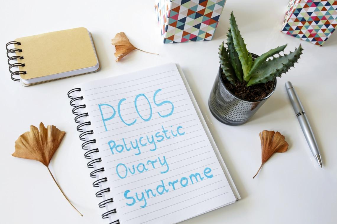 Ezt tehetjük a PCOS tünetek enyhítéséért. Természetes gyógymódok