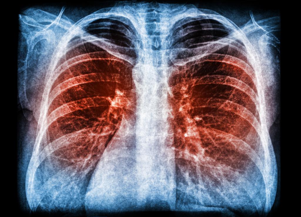 Koronavírus általi tüdőgyulladás