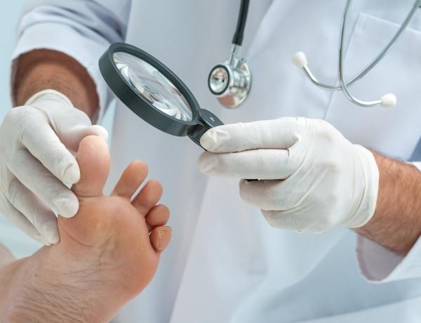 A krónikus betegekre veszélyesebb a körömgomba