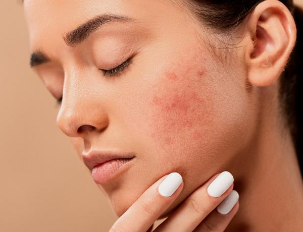 Ezt az olajat használd száraz, irritált vagy akár aknés bőrre